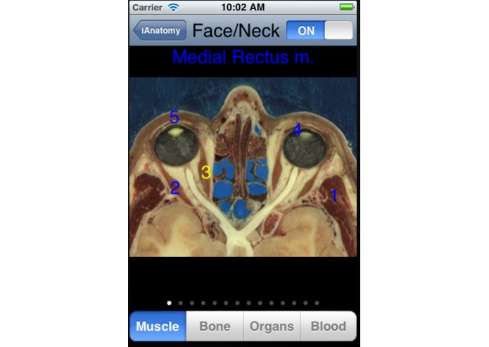 iAnatomy – screenshot 3