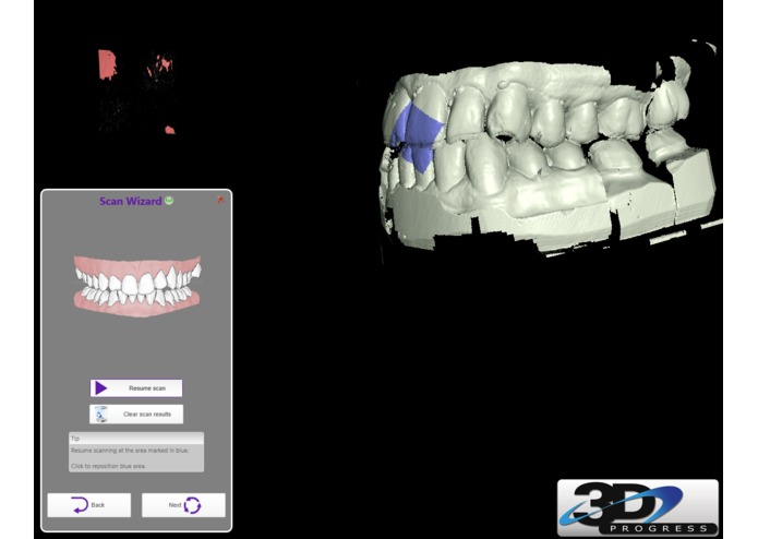 Dental Operatory Augmented Reality Room – screenshot 1