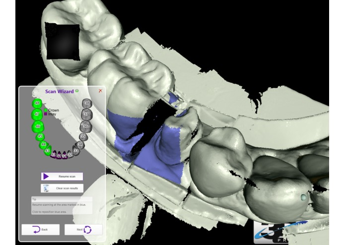 Dental Operatory Augmented Reality Room – screenshot 3