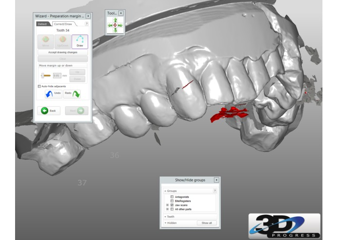 Dental Operatory Augmented Reality Room – screenshot 4