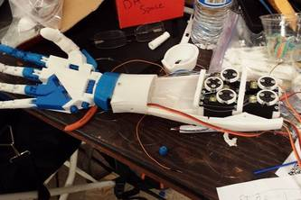Leap Motion Controlled-Prosthetic Arm