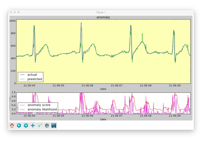 ECG + HTM – screenshot 1