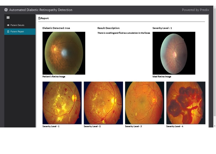 Trojan - Automated Diabetic Retinopathy Detection – screenshot 1