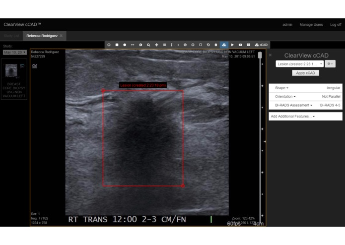 Breast Cancer Ultrasound Computer Assistant Diagnosis  – screenshot 1