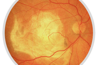Noninvasive Bloodglucose Prediction via Fundus Imagery
