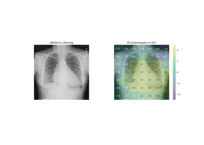 Chest X-Ray Computer Aided Diagnosis using Deep Learning – screenshot 1