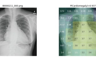 Chest X-Ray Computer Aided Diagnosis using Deep Learning