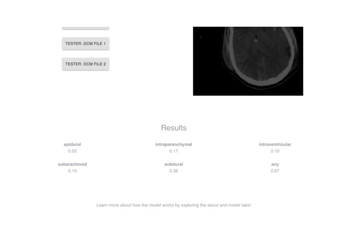 IHIT: Intracranial Hemorrhage Imaging Tool – screenshot 4
