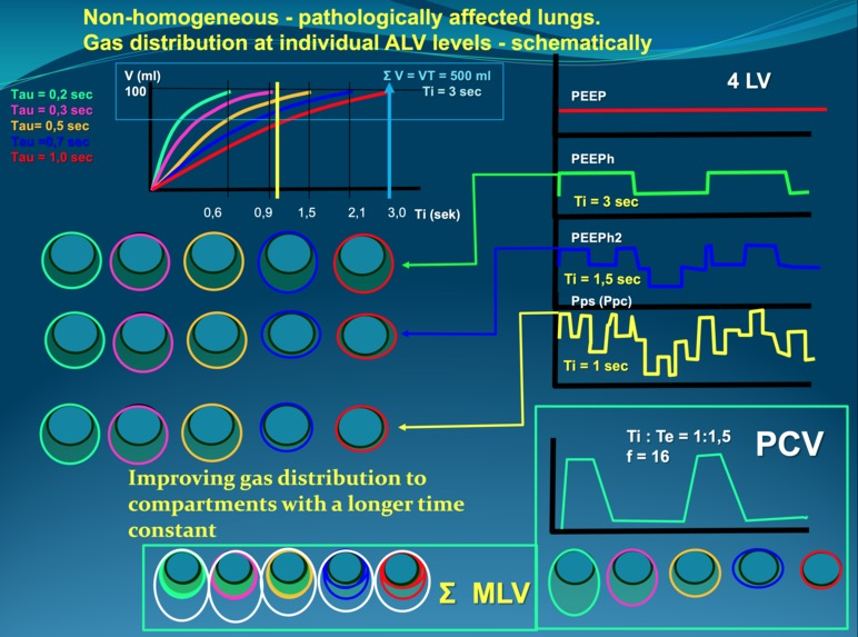 Simulator for training in advanced lung ventilation – screenshot 1