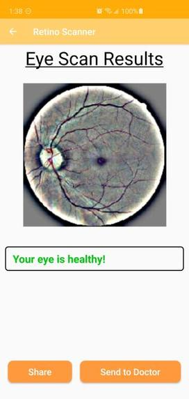 RetnoScan: AI-Based Retinopathy Diagnosis – screenshot 6