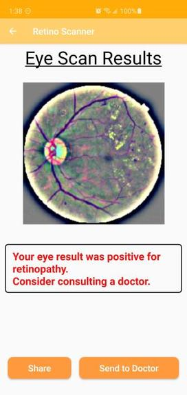 RetnoScan: AI-Based Retinopathy Diagnosis – screenshot 7