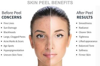 Perfect Healing Touch with Skin Peeling Treatment