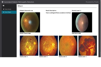 Trojan - Automated Diabetic Retinopathy Detection
