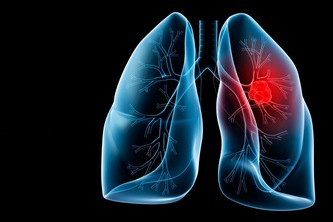 Lung Cancer Detection using Deep Learning