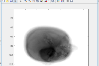 CTscan with moving source