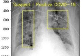 COVID-19-Detection-Device