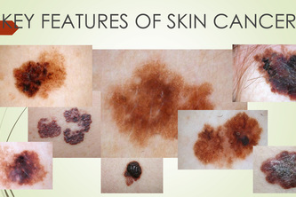 Identification of skin oncological diseases AI