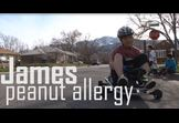 James and the Peanut Allergy